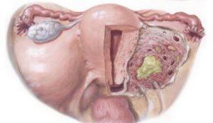 При воспалении яичников могут быть месячные