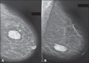 Беременность и фиброаденома молочной железы