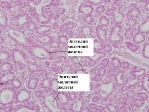 Чешуйки плоского эпителия в молочной железе что это такое