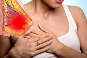 Воспаление молочных желез у женщин лечение