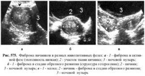 Инволютивные изменения яичников