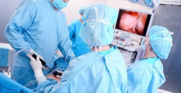 Миома матки операция