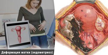 Осложнения эндометриоз