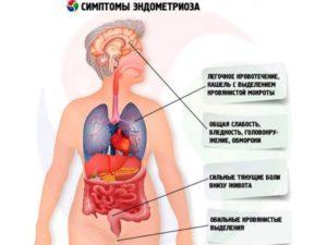 Эндометриоз матки при климаксе симптомы и лечение