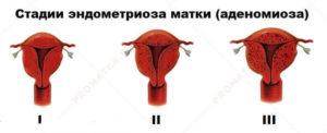 Эндометриоз 2 степени что это