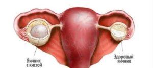Как выходит киста яичника во время месячных