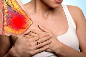 Боль в женской молочной железе