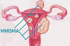 Миома и фибромиома в чем разница