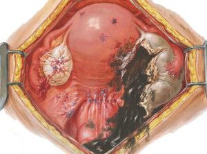 Эндометриоз брюшной полости