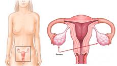 Яичники где находятся у женщин