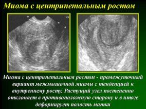 Миома с центрипетальным ростом