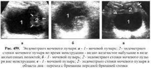 Эндометриоз мочевого пузыря симптомы лечение