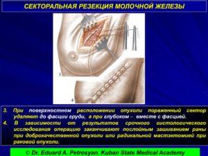 Секторальная резекция молочной железы техника операции