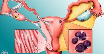 Хронический эндометриоз симптомы и лечение