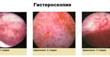 При эндометриозе можно ли делать эко