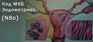 Мкб 10 эндометриоз