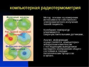 Радиотермометрия молочных желез что это такое