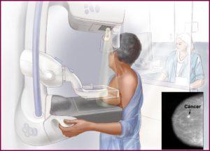 Как проводится маммография молочных желез