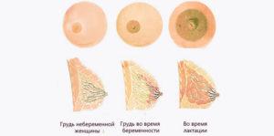 Когда набухают молочные железы при беременности