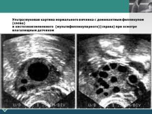 Что такое доминантный фолликул в левом яичнике