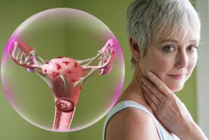 Эндометриоз после климакса