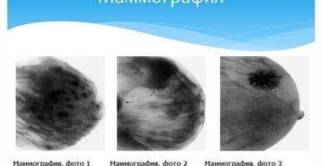 Когда лучше делать маммографию молочных желез