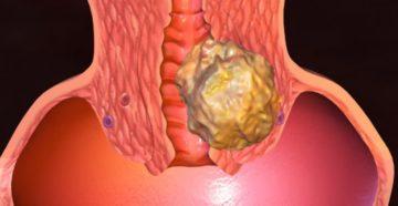 Миома матки перерождается ли в рак