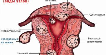 Чем отличается фибромиома матки от миомы