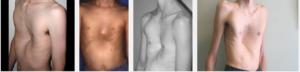 Тубулярность молочных желез что это такое