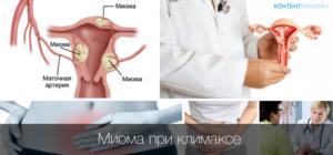 Уменьшается ли миома при климаксе