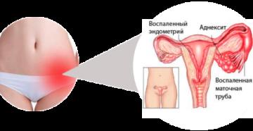 Яичники у женщин расположение воспаление симптомы