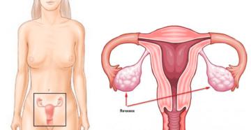 Что такое у женщин яичники