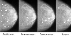 Как лечить кальцинаты в молочной железе