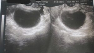 Анэхогенное образование в яичнике что это такое лечение