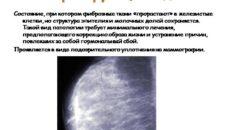 Склерозирующий аденоз молочной железы что это такое