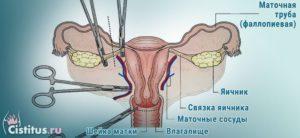 Удаление одного яичника у женщин последствия