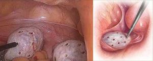 Овуляция при поликистозе яичников