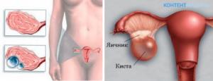 Симптомы кисты яичника слева