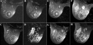 Аденома фиброма молочной железы