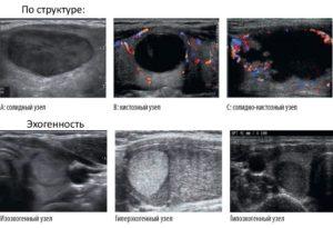 Гиперэхогенное образование в молочной железе что это такое