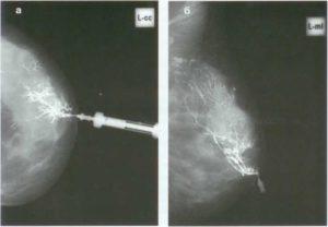 Дуктоскопия молочной железы