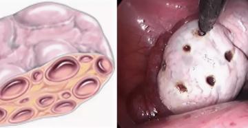 Вторичный поликистоз яичников
