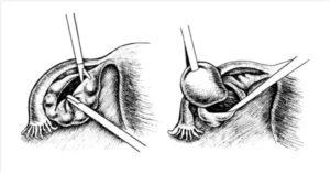 Кистэктомия яичника