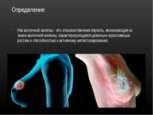 Рак молочной железы определение
