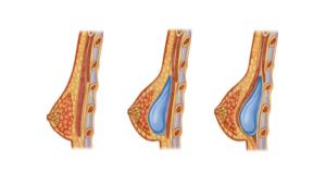 Эндопротезирование молочной железы