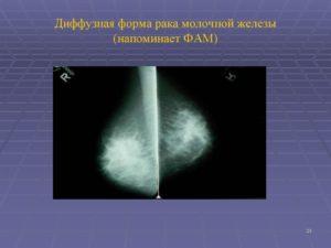 Диффузный фам молочных желез