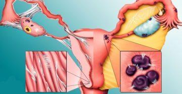 Эндометриоз как быстро развивается