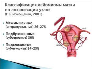 Лейомиома матки и миома отличия