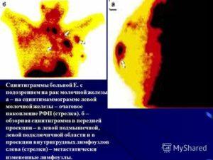 Подозрение на рак молочной железы