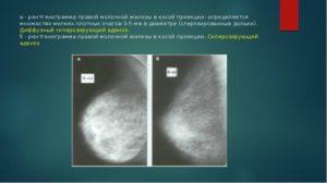 Диффузный аденоз молочной железы